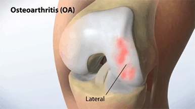 osterarthritis