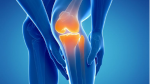 Total Knee Replacement South Florida Orthopaedics